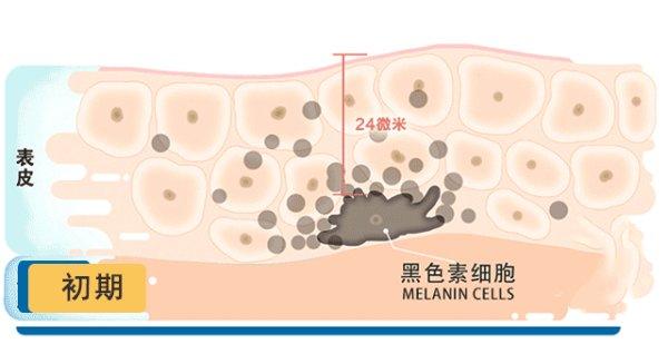 介绍几种简单的美白和祛痘祛斑的方法?(美白祛斑的最好的方法)
