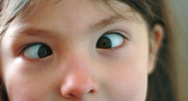 对眼;斗鸡眼是什么意思啊?