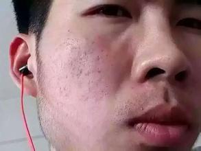 怎么去除脸上的痘痘