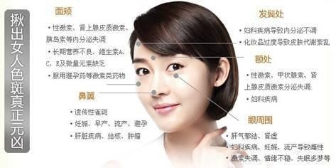 深圳恒妍激光祛斑效果怎么样?