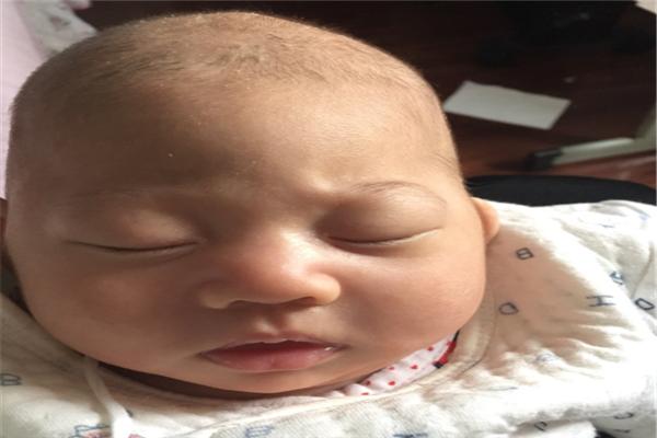 如何正确处理宝宝头上的胎垢?