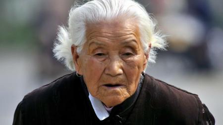 人老了以后是身上所有的毛发都会变白吗?