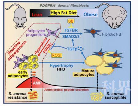肥胖为何导致皮肤感染?致病机制及治疗方案揭晓