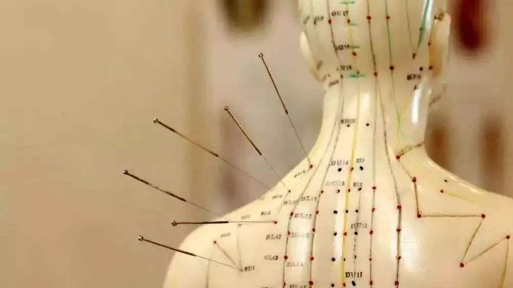 经常针灸对身体有什么好处?