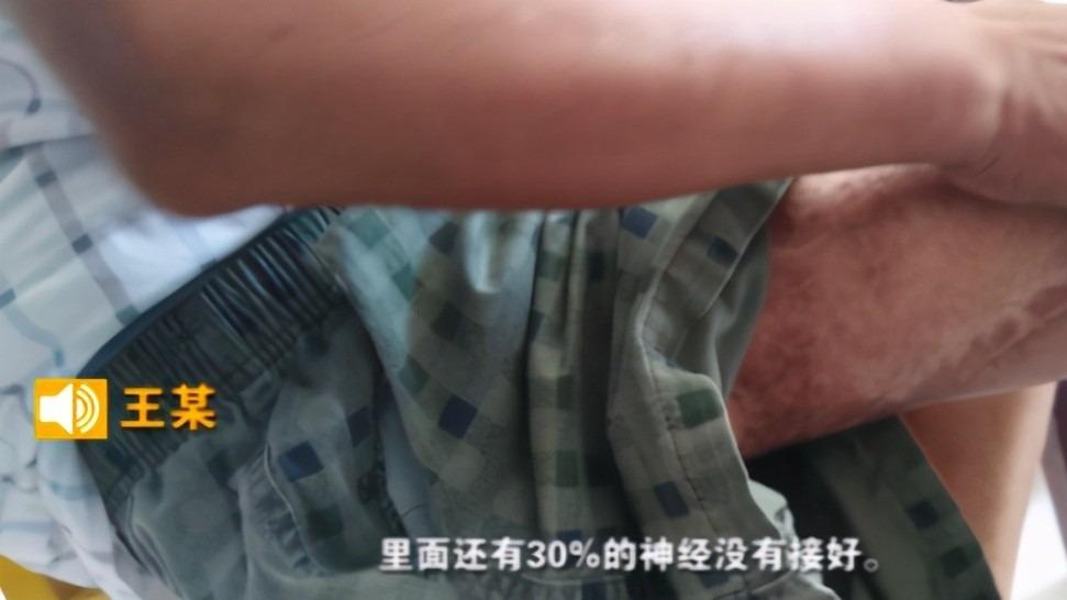 2014年南京工人撿到鏈條,僅接觸3小時,剔骨割肉,終身折磨