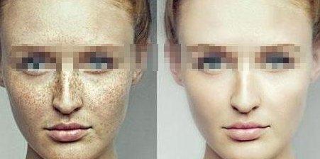 激光祛斑和果酸祛斑的区别