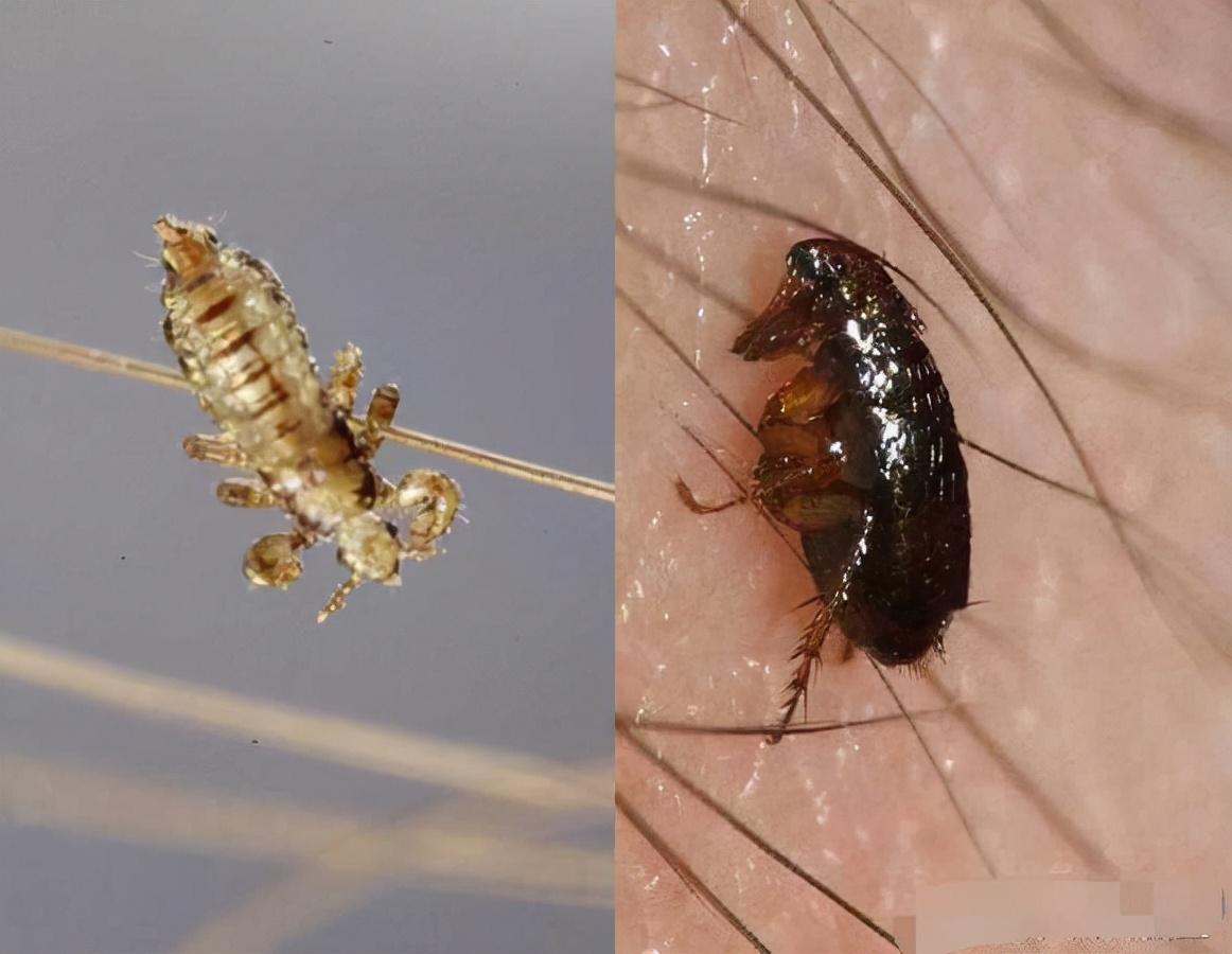70后、80后,甚至90后都见过的虱子,为何近些年见不到了?