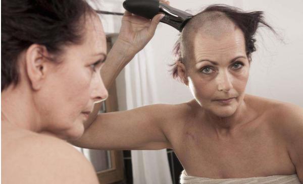 为什么头顶头发稀少;女性头顶头发稀少是什么原因造成的?