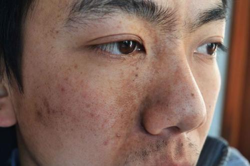 鼻炎患者用盐水洗鼻能不能缓解鼻炎?