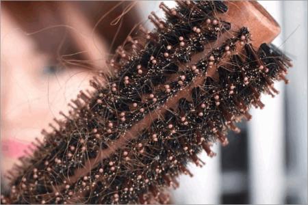 为什么头顶头发稀少;头顶头发稀少什么原因造成的
